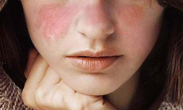 Вовчак часто проявляється червоними плямами на обличчі
