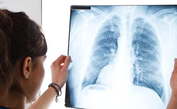 Легеневу гіпертензію може спричинити інфекція, яка призвела до запалення