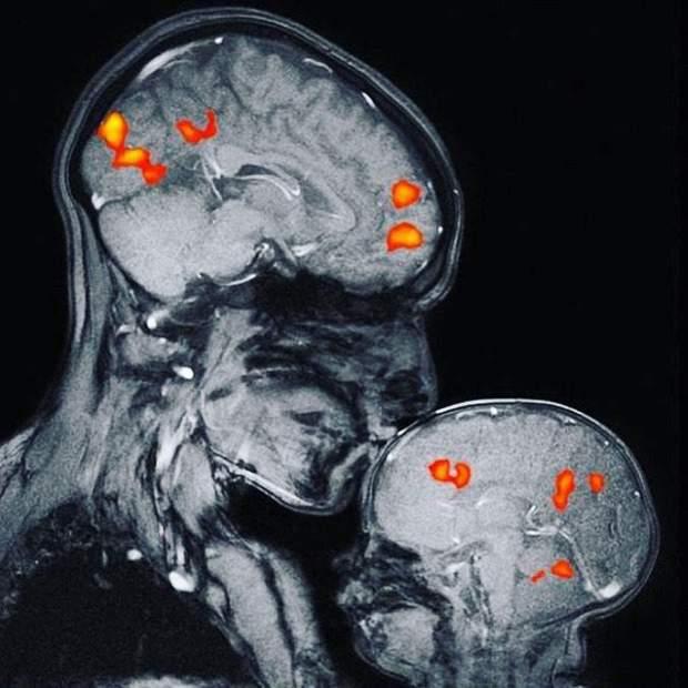Що відбувається під час поцілунку у мозку мами і дитини