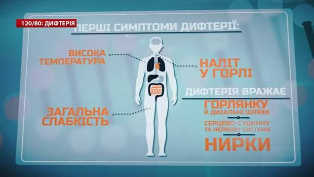 Перші симптоми дифтерії / Скріншот з відео 24 каналу