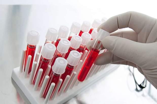 Для підтвердження поганого згортання крові – потрібно здати аналізи