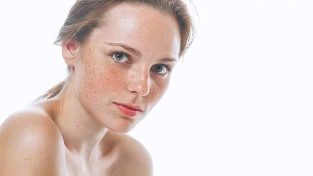 В лікуванні пігментних плям важливий захист від сонця