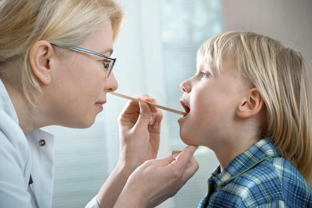 Ангіною частіше хворіють діти