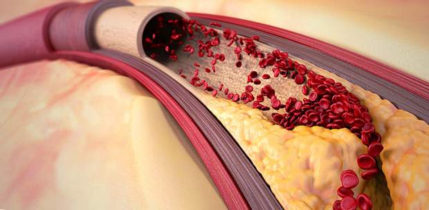Супрун про атеросклероз та чистку судин