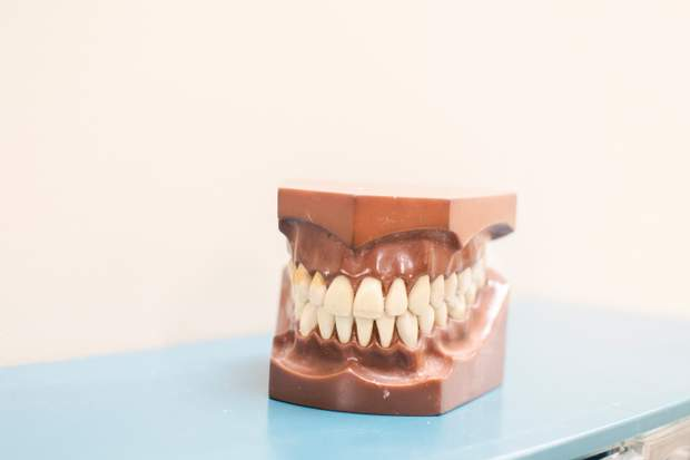 Карієс може викликати втрату зуба