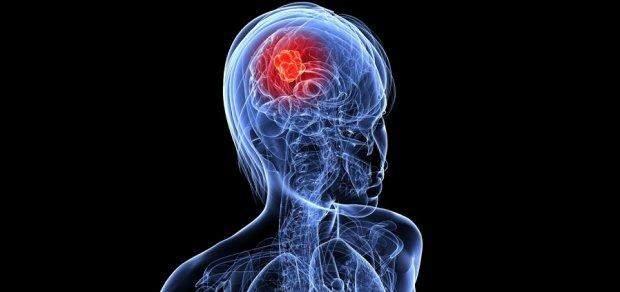Рак мозку має дуже звичайні симптоми