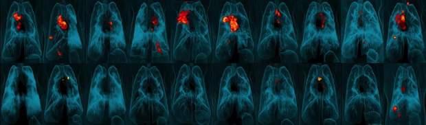 Вакцина проти туберкульозу