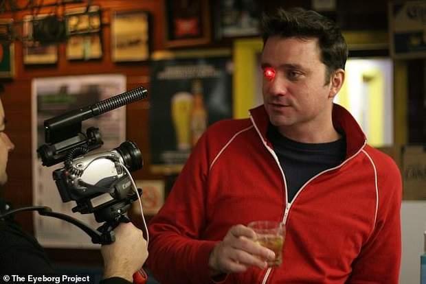 Канадець вставив відеокамеру замість втраченого ока