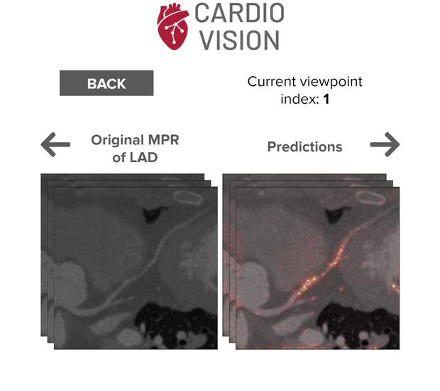Cardio Vision