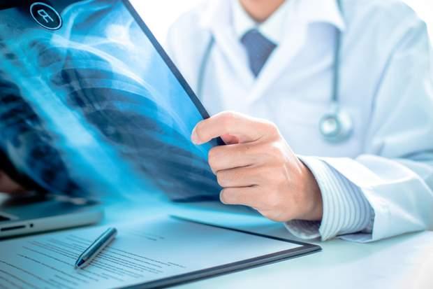 Туберкульозні деспансери реорганізовують бо вони не відповідають сучасним протоколам лікування