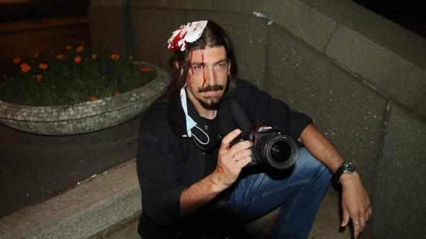 сербія напад журналісти