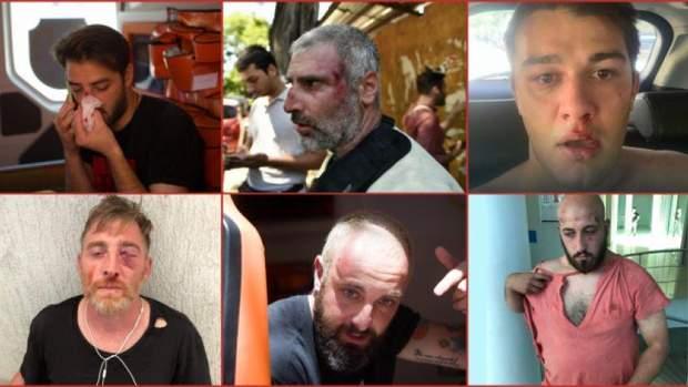 Радикали поранидли понад 40 журналістів