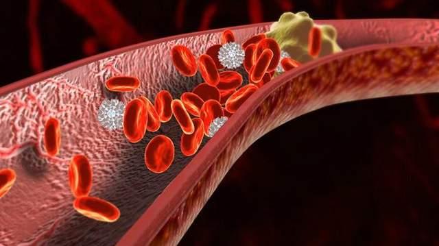 Три простых способа растворить тромбы