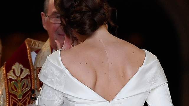 Принцесса Евгения в свадебном платье показала большой шрам: фото
