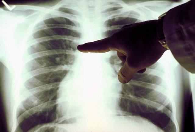 Украинцы разработали уникальное приложение для диагностики рака: в чем его особенность