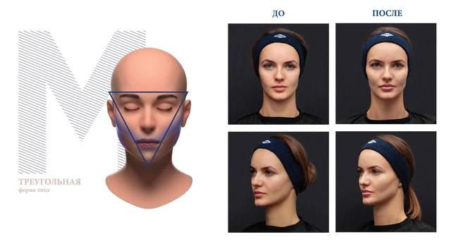 Процедура для корекції обличчя