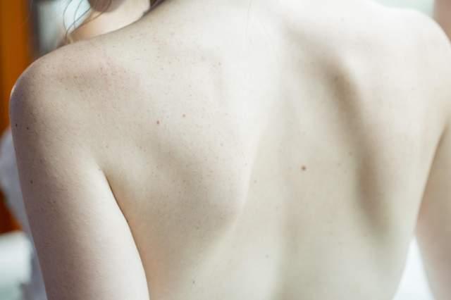 Акне на спині