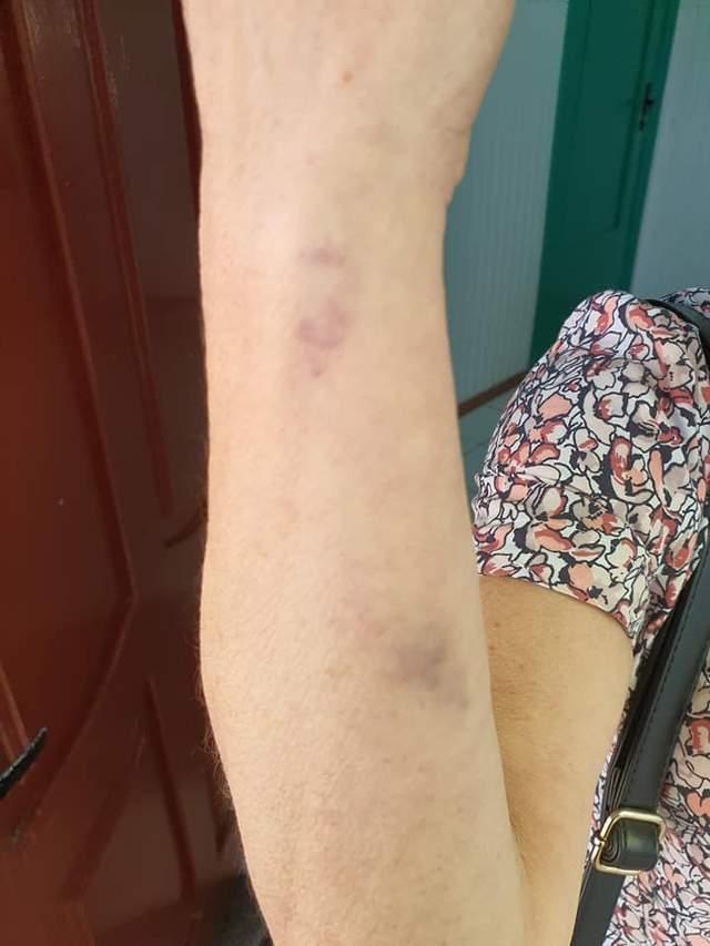 У Сумах побили кондукторку за прохання одягнути маску