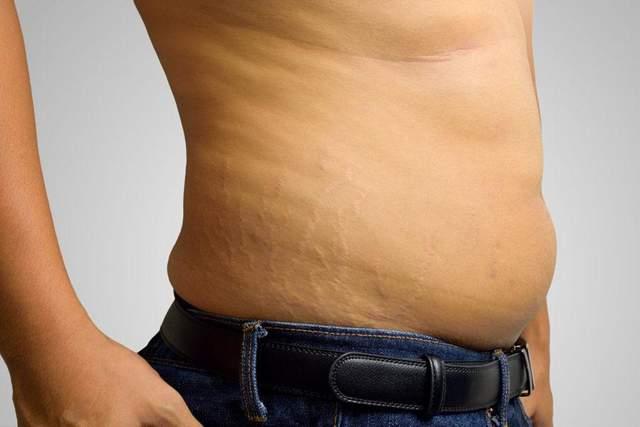 Гормональний живіт може призвести до проблем зі здоров'ям