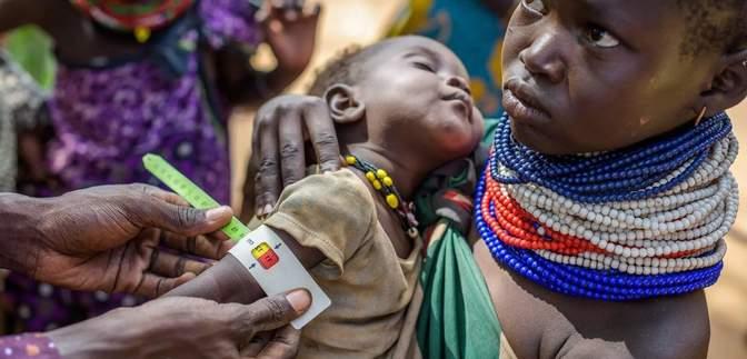 Цифры ежегодно растут: в мире голодают более 800 миллионов человек