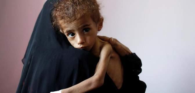 Щодня 12 тисяч жертв: голод внаслідок пандемії може вбити більше людей, ніж коронавірус
