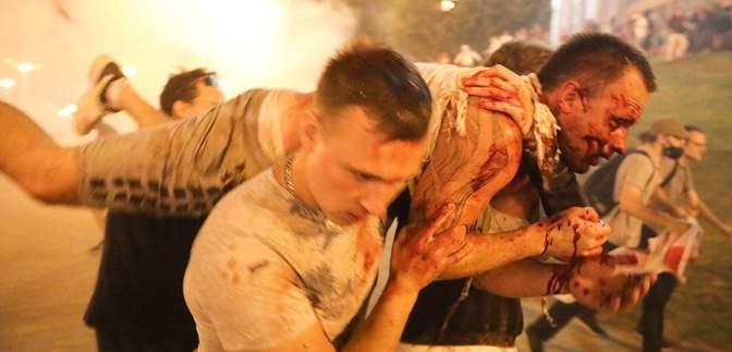 Роздягають догола і нещадно б'ють: як ОМОНівці катують затриманих підлітків у Мінську