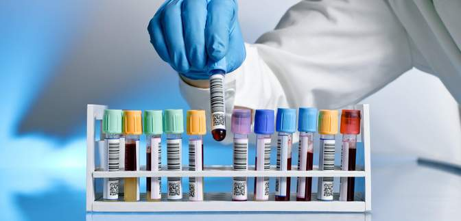 У Південній Кореї не знайшли зв'язку між смертю 8 людей і вакцинацією препаратом від AstraZeneca