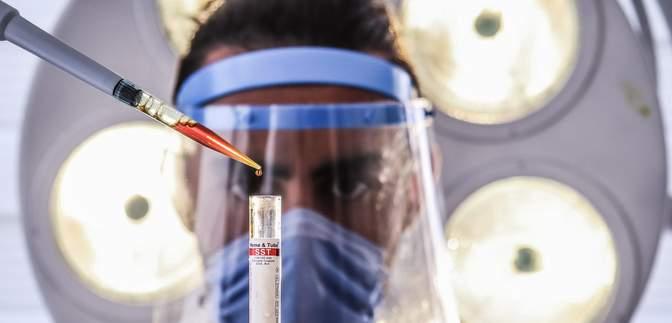 Чому деякі носії ВІЛ не хворіють на СНІД