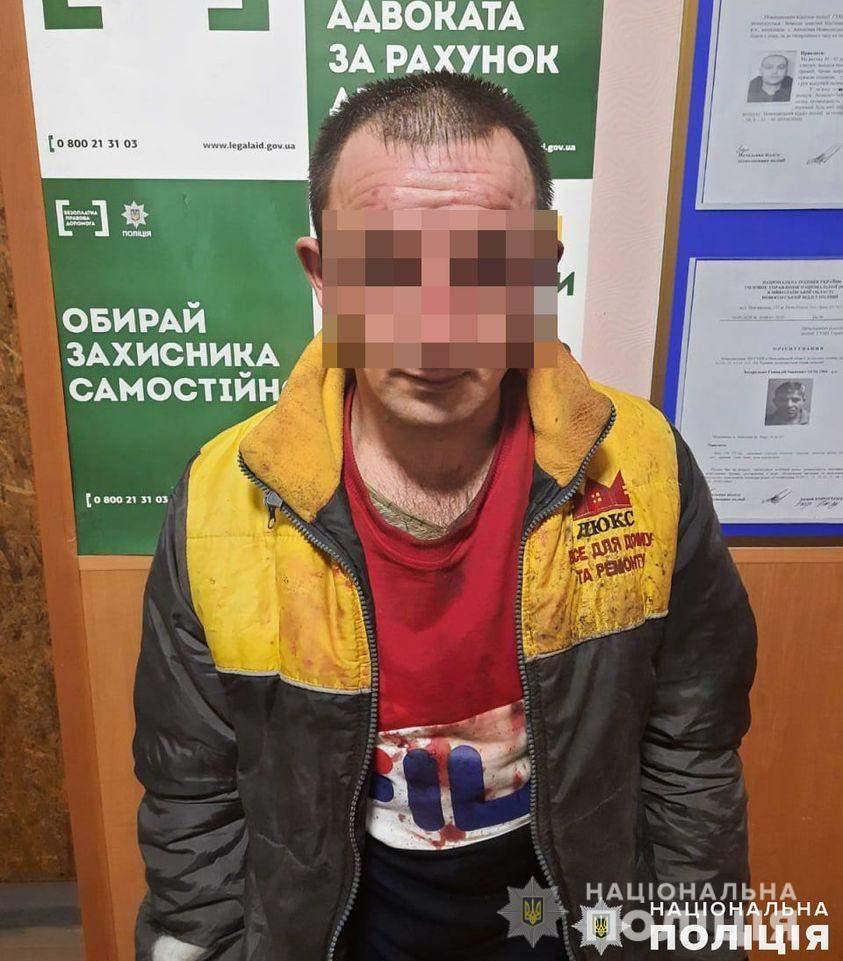 На Миколаївщині чоловік облив кислотою жінку та її маленьких дітей