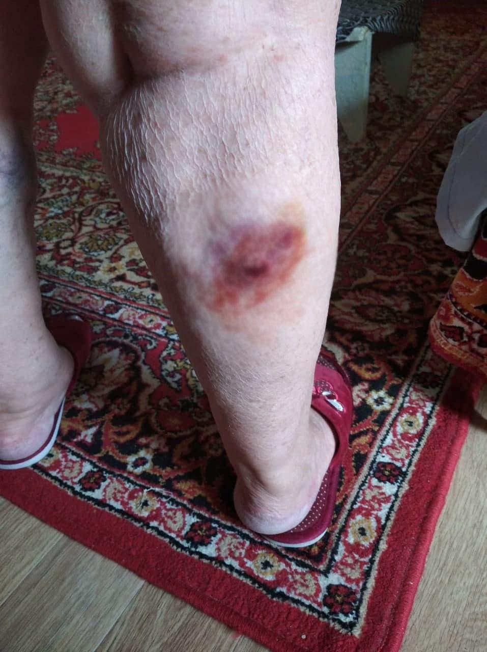 Гога укус собаки Травма Бродячі собаки напад на людину собак Дніпро