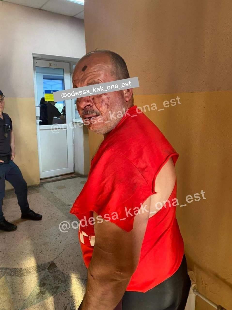 Зґвалтування Тягнув у сквер Дитину з ДЦП Одеса Відділок Поліції