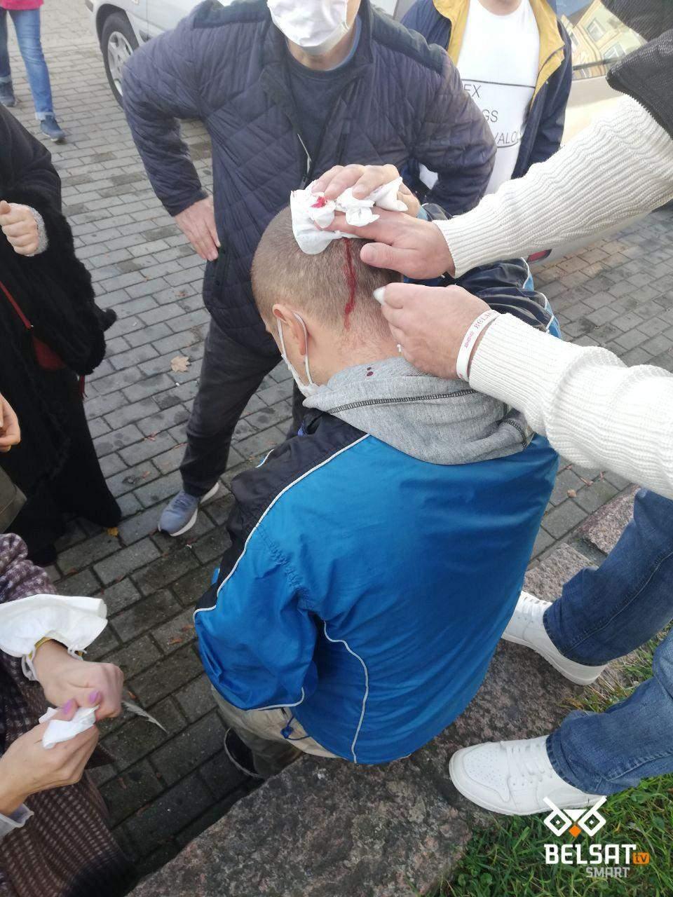перший поранений під час протестів у Гродно